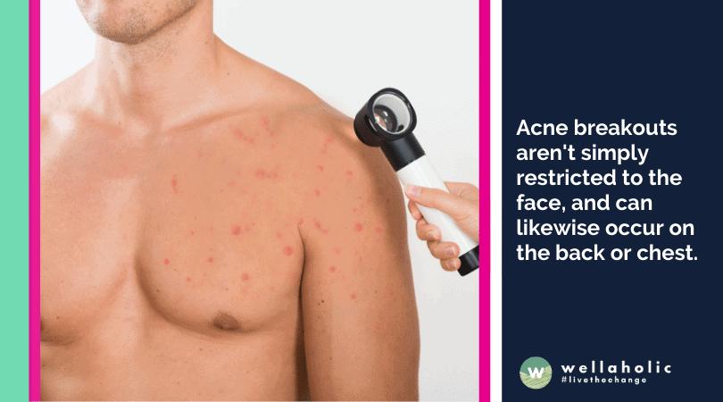 Examine the different factors causing acne