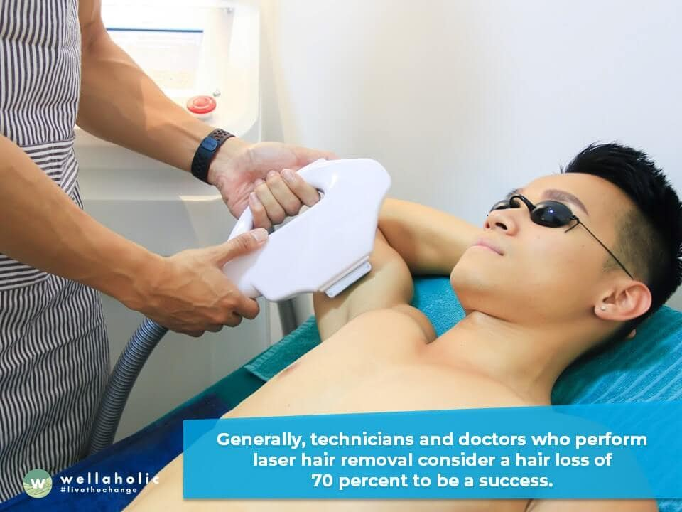 Laser hair removal is often touted as a method of