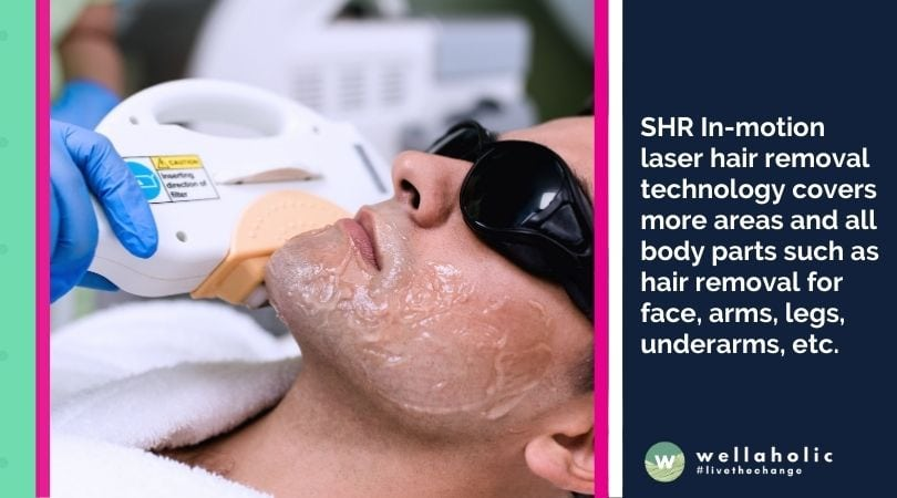 SHR In-motion laser hair removal technology covers more areas and all body parts such as hair removal for face, arms, legs, underarms, etc