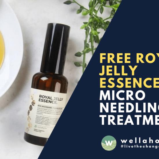 free royal jelly essence microneedling
