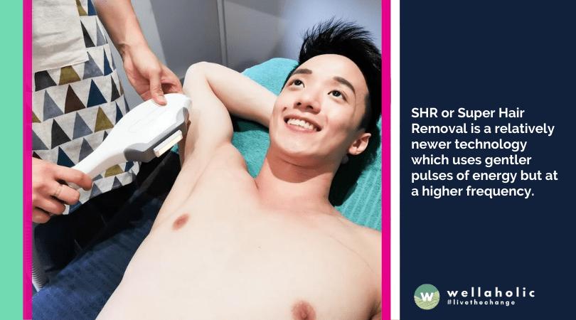 SHR or Super Hair Removal